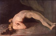 A person suffering from lockjaw, painted by Sir Charles Bell. Bring out the turpentine.